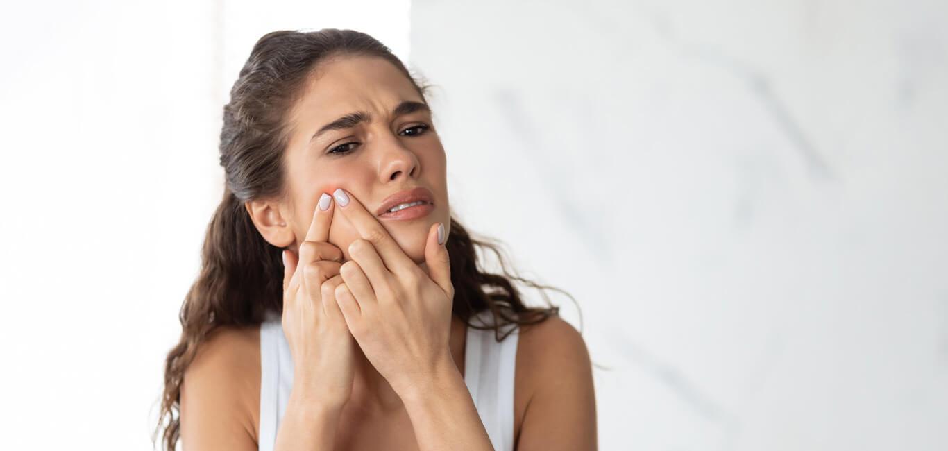 5 Must Have Skincare Producten bij Acne
