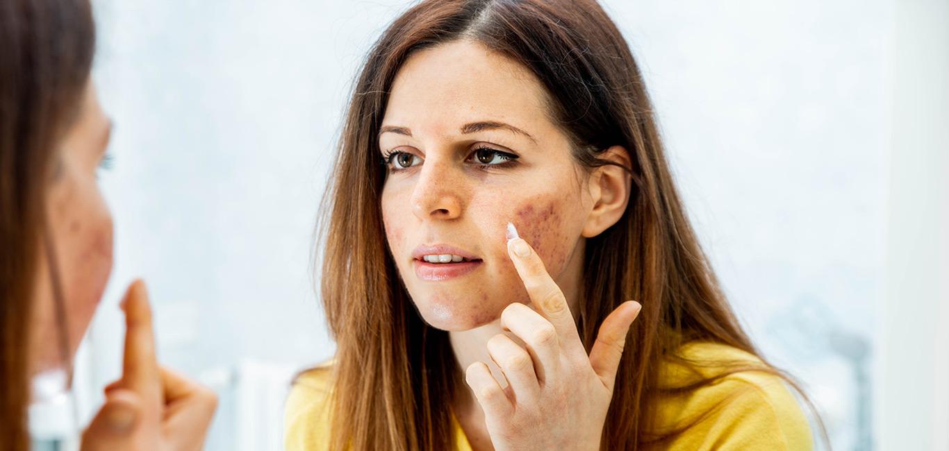 acne informatie