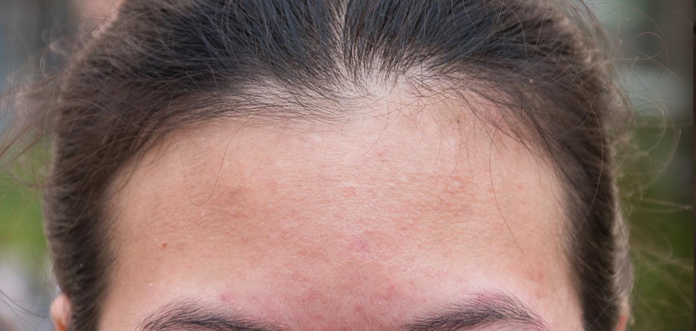 olivida_droge-huid-gezicht
