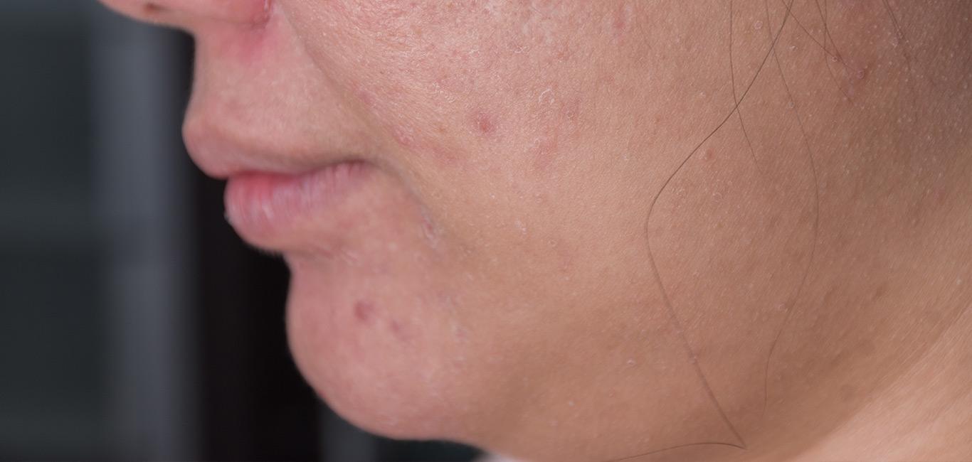 olivida_droge-huid-schilfers