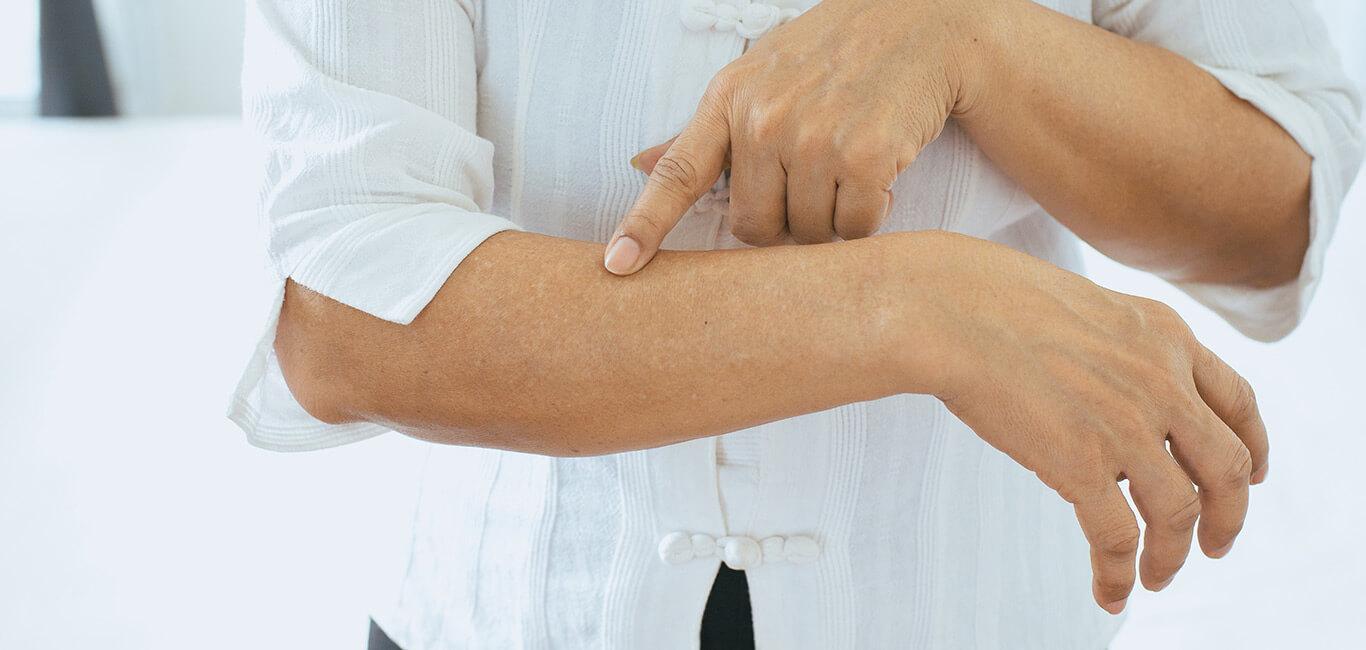 huidaandoening pigmentatie