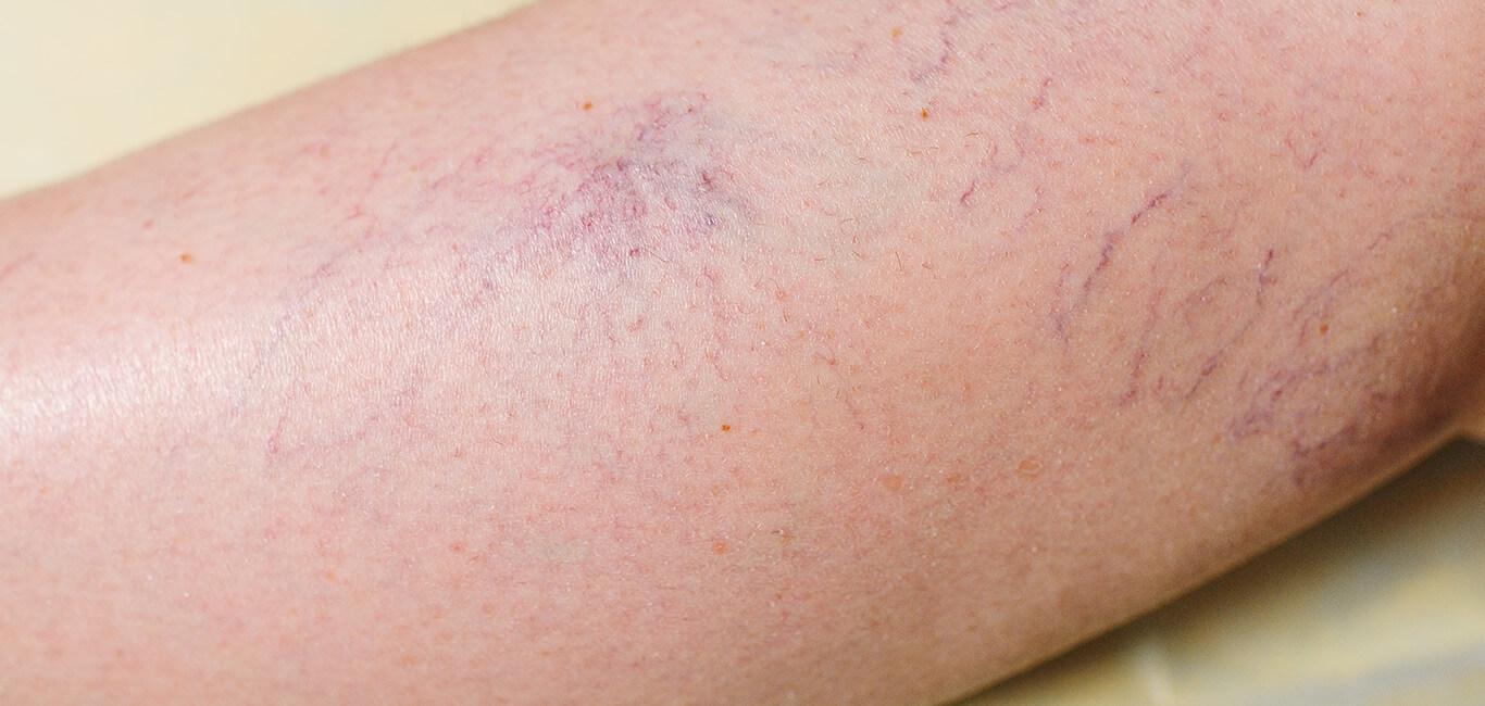Rosacea huid