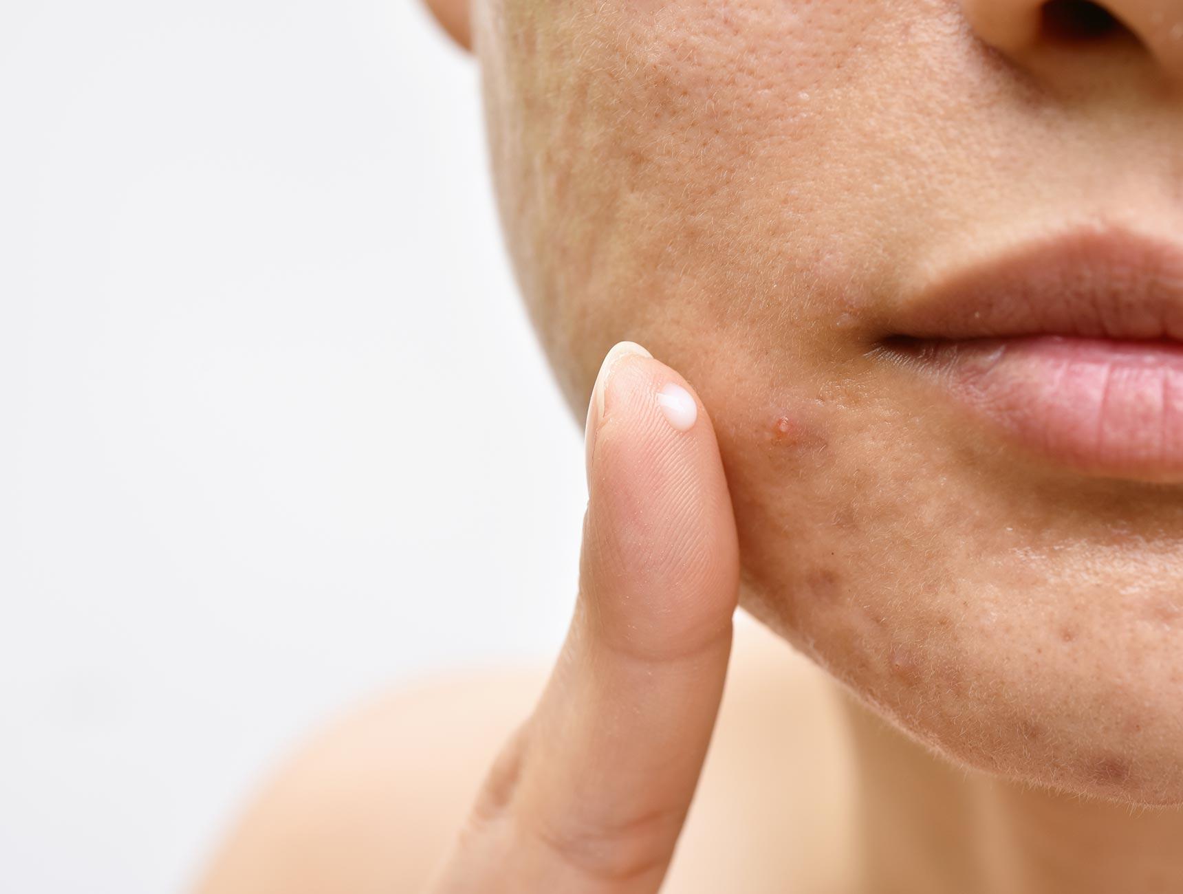 creme acne hormonen